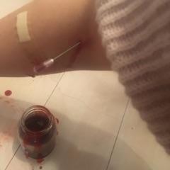 やり方 瀉血