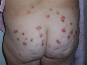 Rare Illnesses: Rare Skin Diseases