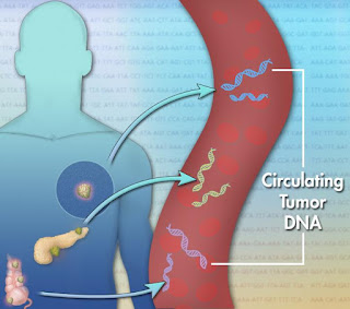 Cancer DNA In Blood May Help Personalize Liver Cancer Treatment