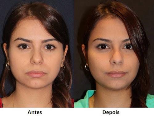 Bichectomia: saiba tudo sobre a cirurgia de redução das bochechas para afinar o rosto