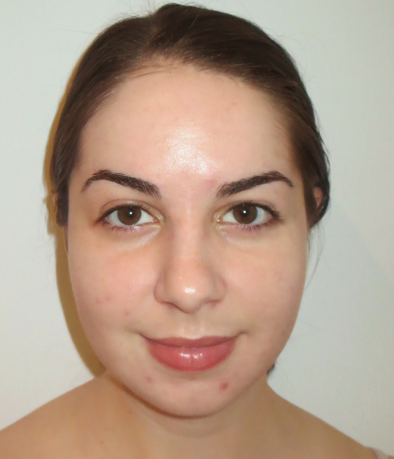 a picture of a female with mild acne