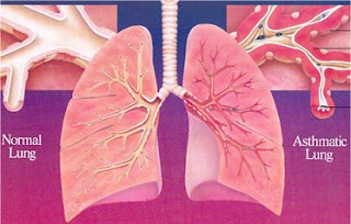 Management of asthma , management of asthma bronchial , procedure of asthma,  asthma bronchial  Procedure