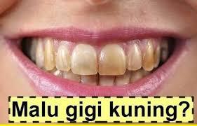 Cara memutihkan gigi dengan proses alami