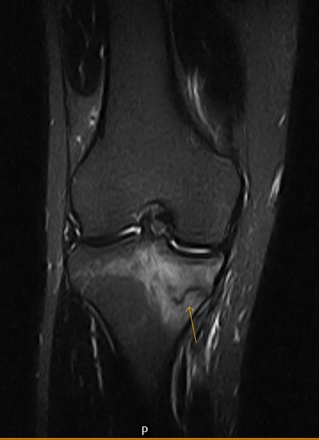 Stress Fracture MRI-1.bp.blogspot.com