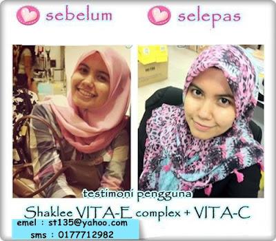 Vitamin Kecantikan - Vitamin C dan Vitamin E