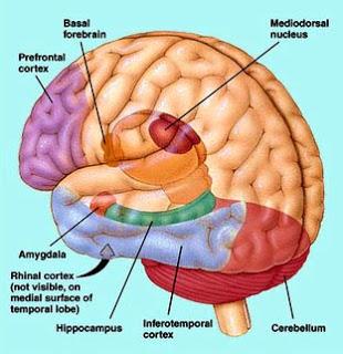 10 Kebiasaan Yang Bisa Merusak Otak Kita