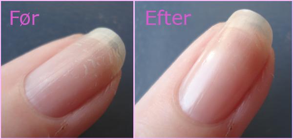 hud og negle