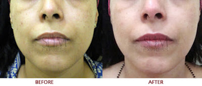 Skin Pigmentation before and after image