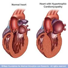 Cause of hypertrophic cardiomyopathy