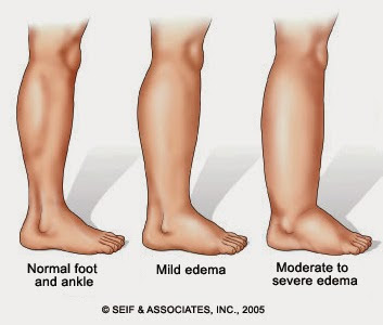 kategori kaki sembap ketika mengandung perlukan makanan berkhasiat