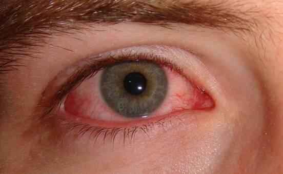 Treatment of sperm in eye