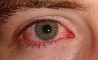 pink eye conjunctivitis remedy, home remedies for pink eye