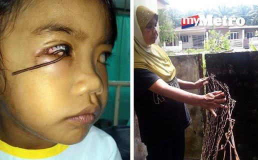 Budak menderita dawai besi tertusuk dan tersangkut di kelopak mata