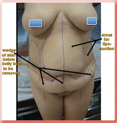 Marking for abdominoplasty tummy tuck