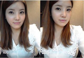 foto sebelum dan sesudah operasi plastik hidung di Wonjin-6