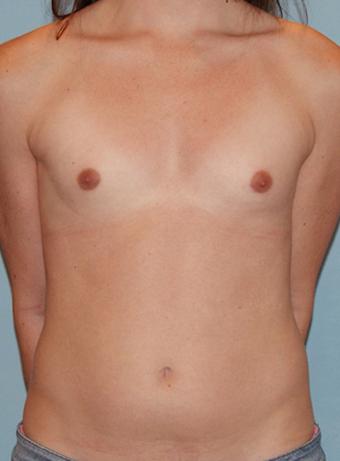 Imagen natural mejora del pecho