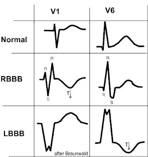 Killer ECG Patterns - Deadly Diagnoses Not To Miss!! - LITFL