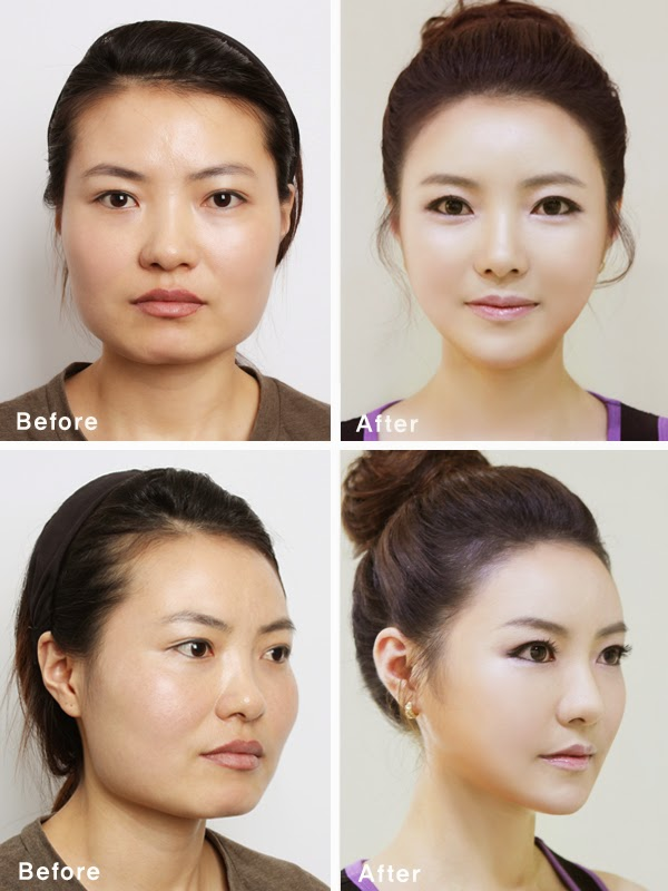 Korean Plastic Surgery Before and After