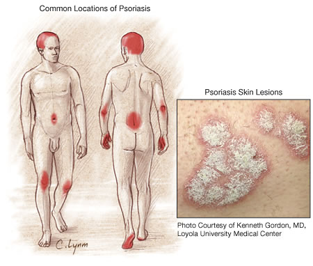 The causes of psoriasis are not completely understood 1