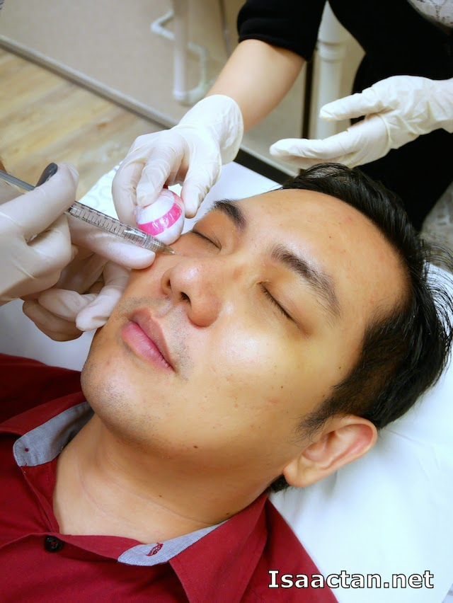 Dermafillers being injected into my face under the eye