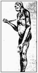 GAMBAR SKETSA MANUSIA PURBA Homo Mojokertensis