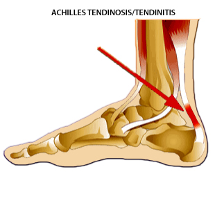 Running Shoes For Achilles Problems