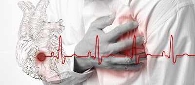 Characteristic chest pain due to heart problems