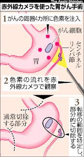 胃がん 摘出手術 センチネルリンパ節 赤外線カメラ 最小限