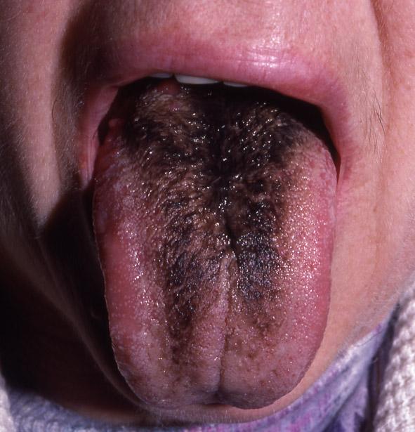 Devant le miroir votre langue se colore de noir depuis for Syndrome miroir