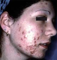Comment soigner l'acné adulte