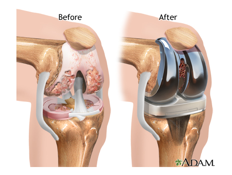 sleeping concerns after total knee replacement