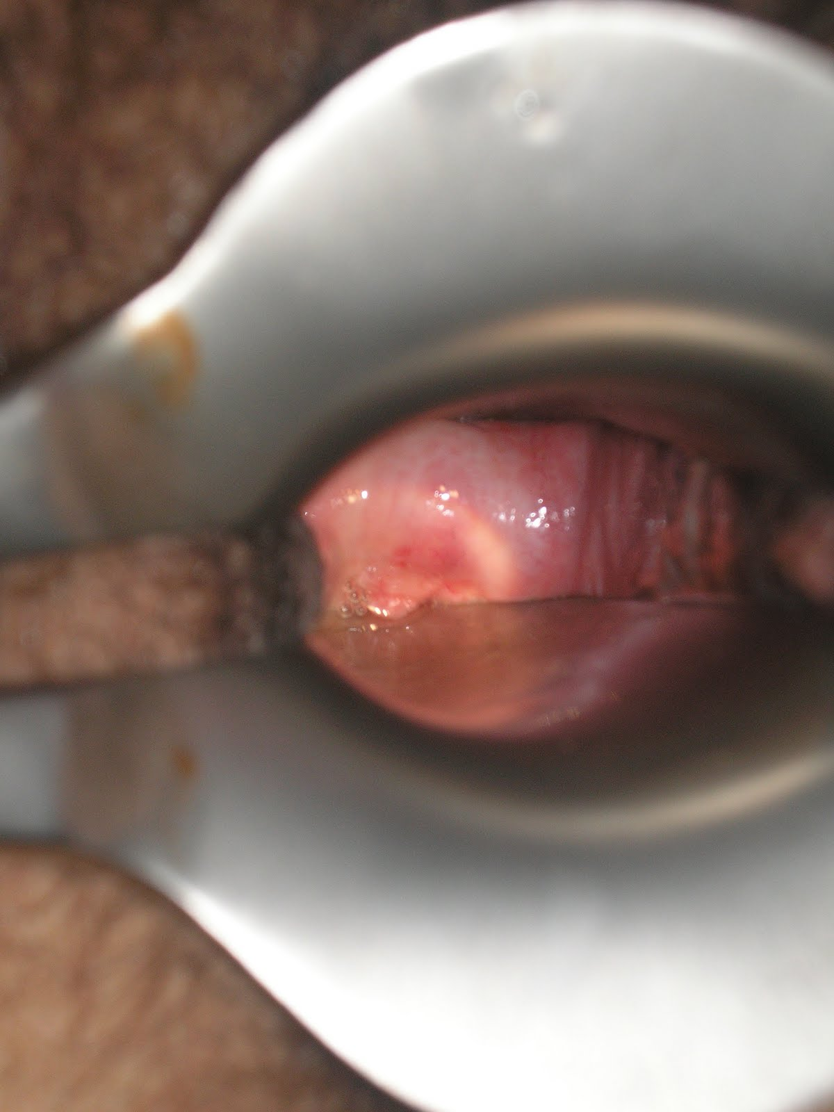 Sangre y moco de la vagina