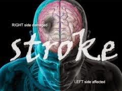 Cara Menyembuhkan Penyakit Stroke Dengan Bahan Alami
