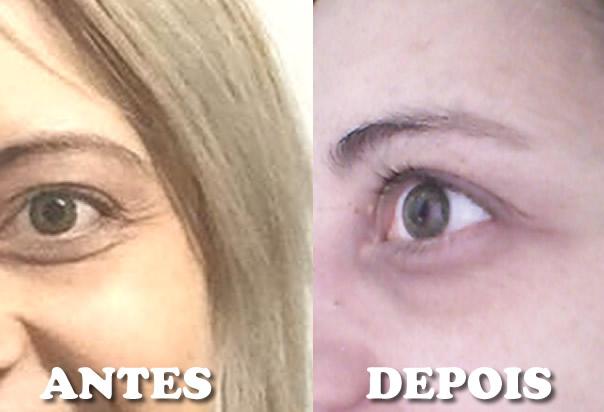 Botox natural e caseiro