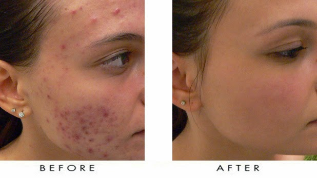 Make Your Face Clear With Using Laser Acne Treatment