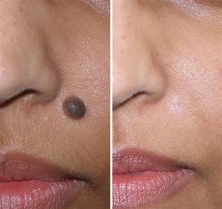 Mole Removal Scar