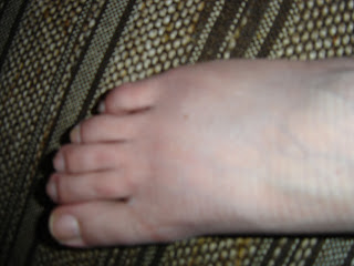 My right foot, black and swollen down the right edge, from being tossed to the ground by the Christchurch earthquake February 22nd 2011
