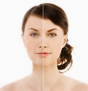 Skin without acne: Procedures, which will take