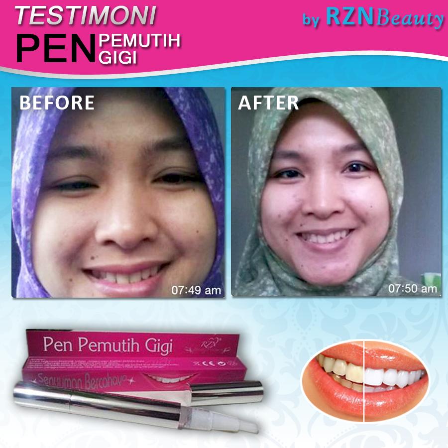 Testimoni Pen Pemutih Gigi Dan Iklan Rzn Beauty Resources Nu Smile Update