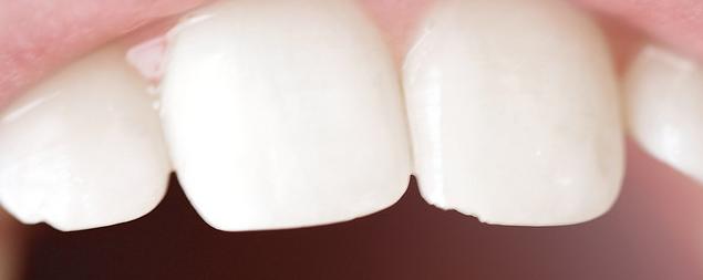 garder dents propres