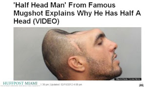 Un hombre 'con media cabeza' explica el porqué de su anomalía