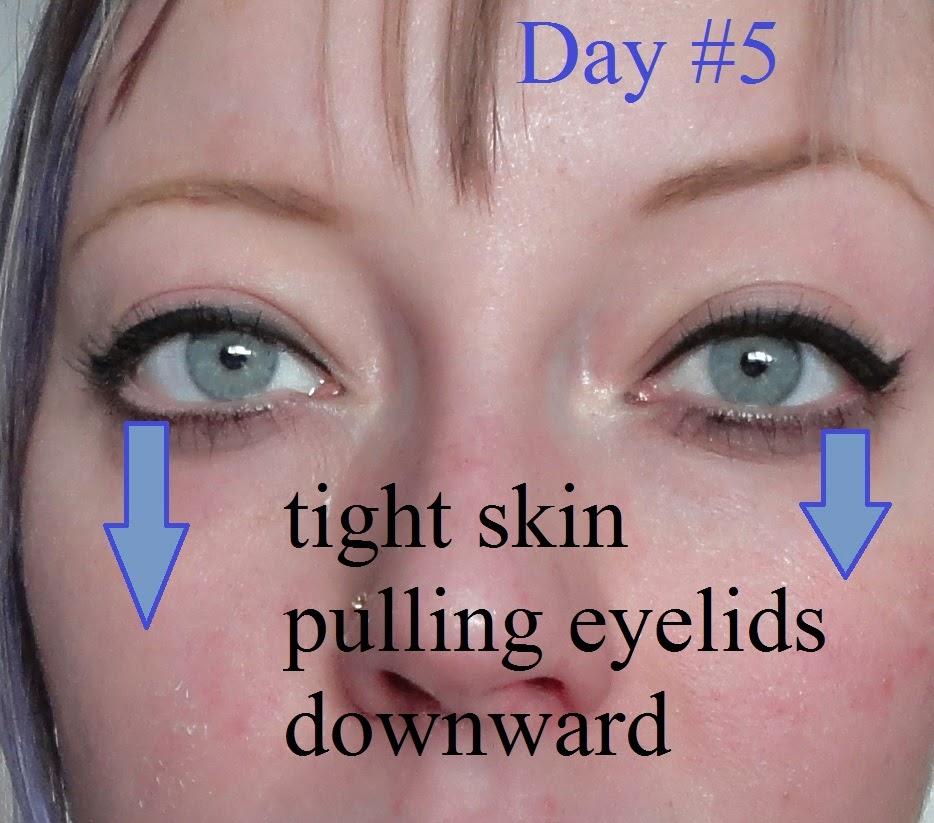 Trichloroacetic Acid tca peeling burn skin blue eyes droopy undereye wrinkles