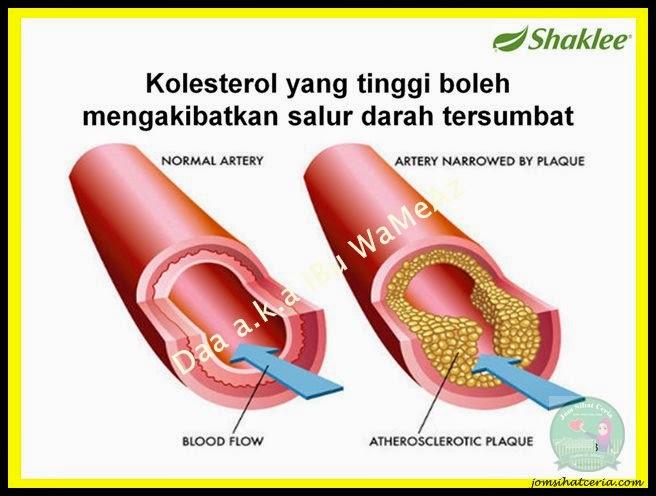 Pengedar Shaklee Kuantan, Phytocol-ST, Produk SHAKLEE,
