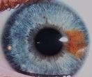 Heterochromia sebagian