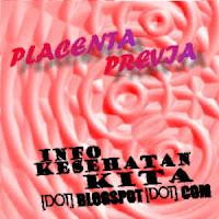 Placenta Previa | Info Kesehatan Kita