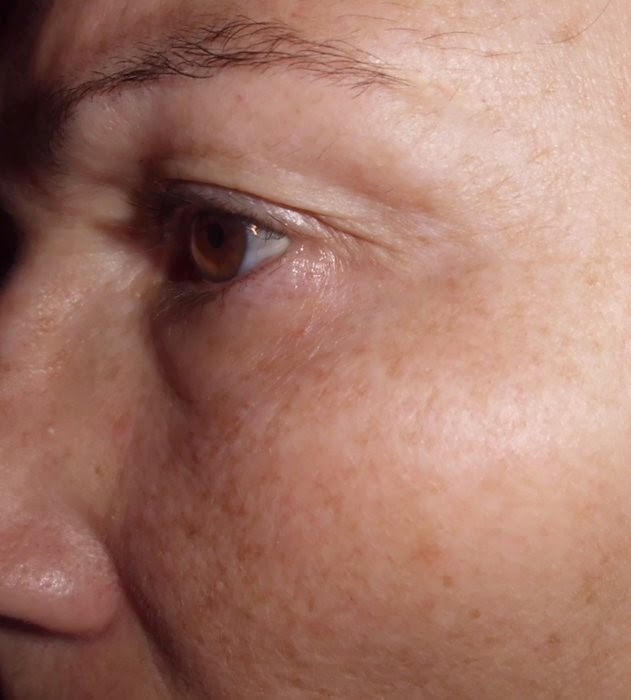 piel seca antes de germaine de capuccini