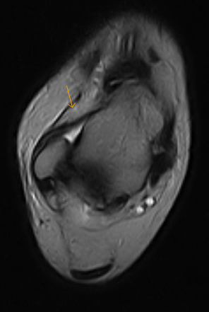 Anterolateral Ankle Impingement Mri Sumer S Radiology Blog