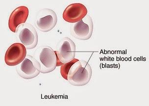 penyebab penyakit kanker darah