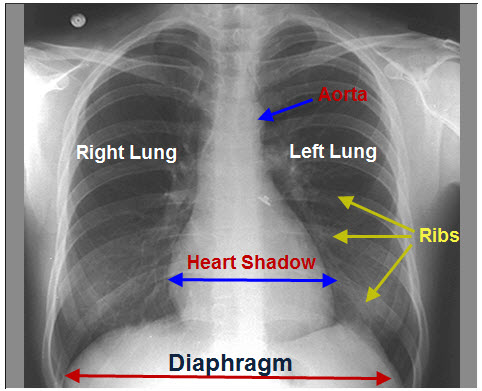 Normal Chest X-ray On Lungs