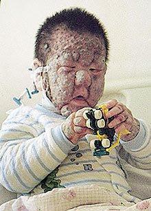 Budak Terumbu Karang di China